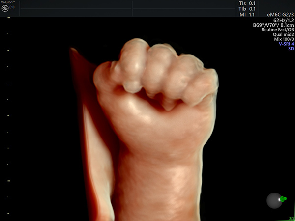 3D Ultraschall Fetale Hand - Frauenarzt Frauenärztin Gynäkologie Pränataldiagnostik Ersttrimesterscreening DEGUM II Essen